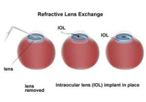 win_rle___refractive_lens_exchange_by_winvision-dav0hlt